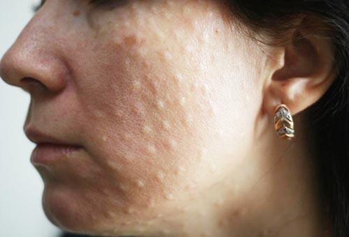 Реакция кожи лица на инъекции