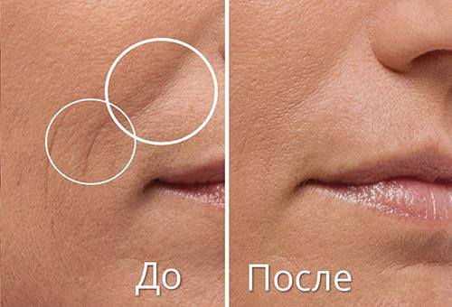 Кожа до и после филлера с гиалуроновой кислотой